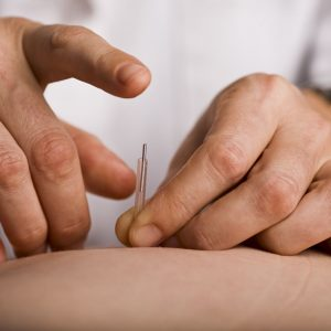 Encinitas Acupuncture
