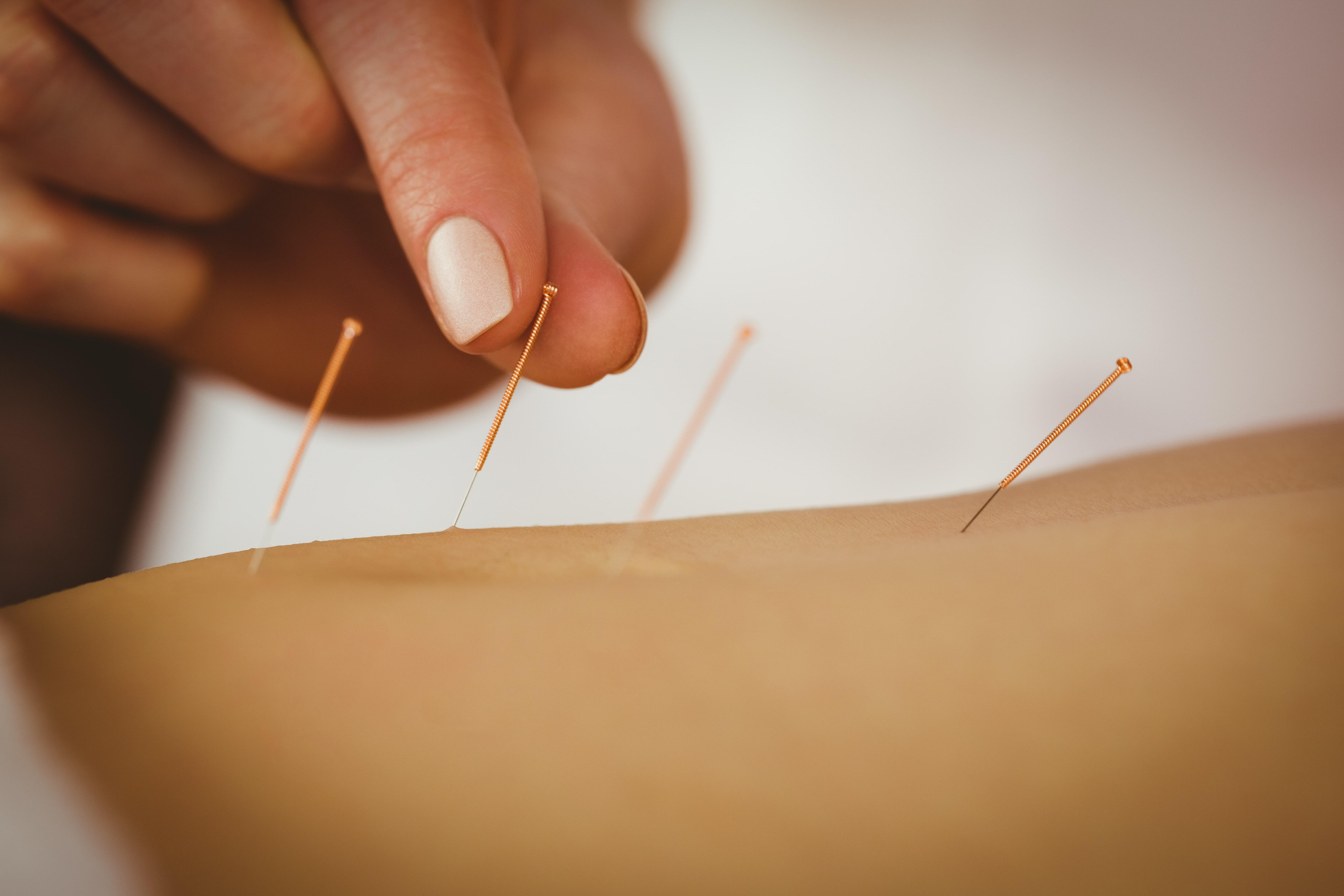 How Often Do You Need To Go In For Acupuncture ...